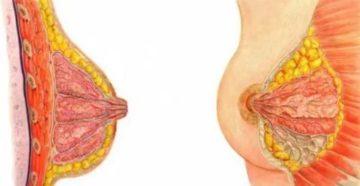 Уплотнение в груди после прекращения гв через неделю
