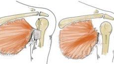 Частичное повреждение большой грудной мышцы