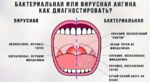 Болит горло и десна