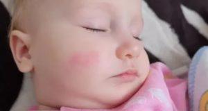 Пятно на щеке у ребёнка