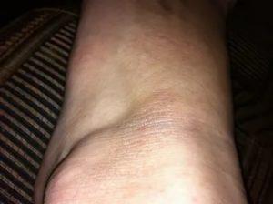 Сухое темное пятно на щиколотке ног