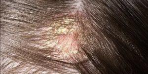 ЗУдит кожа головы, волосы липкие, выпадают, на коже налет жирный