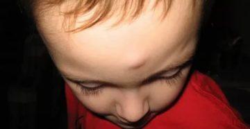 Уплотнение после ушиба на переносице