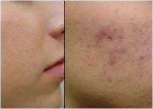 Прыщи переходящие в язвочки и проходящие оставляя шрам