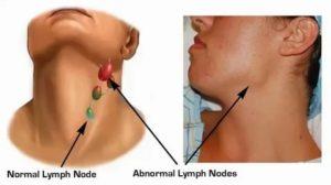 Увеличены лимфоузлы и печень, а также изменение в крови