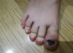 Ушиб пальца у ребенка