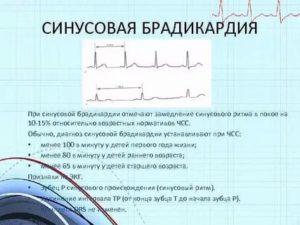 Заключение синусовая брадикардия