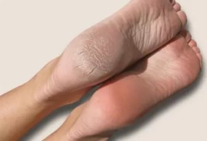 Проблема с кожей пяток