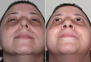 После вазотомии