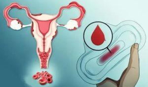 Долго не устанавливается менструация
