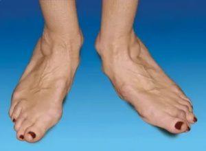 Пульсирует палец на ноге