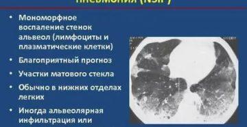Консультация по неспецифическая интерстициальная пневмония