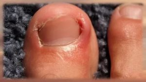 Боль под ногтем