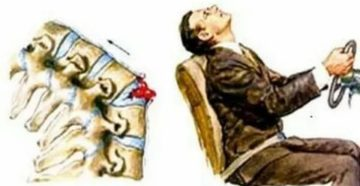 Срок больничного с переломом шейного отдела позвоночника