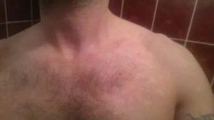 Красные пятна на шее и груди