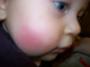 Красное горячее пятно на щеке