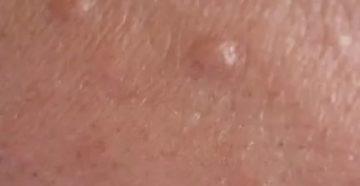 Бледно розовые пупырышки на стволе члена и лобковой области (фото)