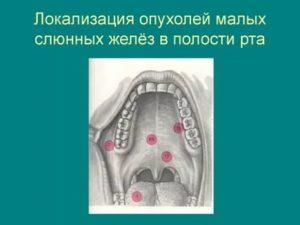 Киста малого язычка лечение