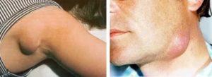 Увеличенные лимфоузлы на спине