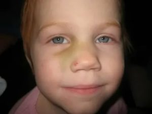 На носу у ребенка маленький синячок