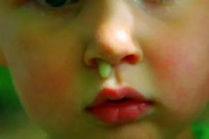 Гайморит. Антибиотики. Зелено-желтые сопли