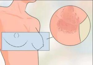 Красные точки на сосках у кормящей мамы