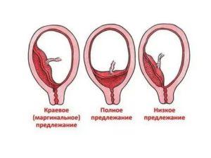 Краевое прикрепление плаценты