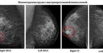 Внутрипротоковой папиллома молочной железы