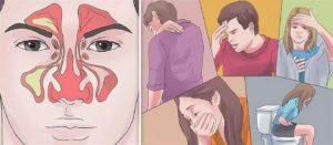Головные боли после гайморита