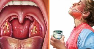 Чем обрабатывать горло при гнойной ангине?