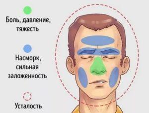 Давит в области носа