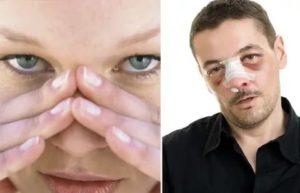 Хруст в переносице после ушиба