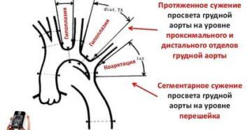 Гипоплазия восходящего отдела аорты