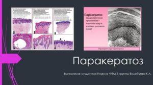 Биопсия шейки матки Очаговый паракератоз