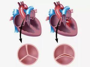 Что делать если в аортальном клапане 2 створки вместо 3?
