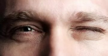 Жмурит глаза без причины