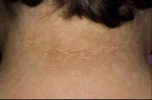 Пятна на шее коричневого цвета!