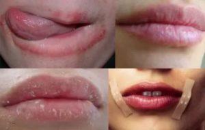 Сохнут губы во время беременности