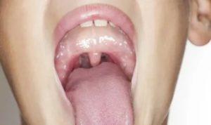 Воспаление язычка