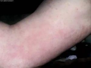 Красная Сыпь на руках и ногах
