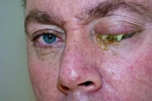 Гноятся раны на лице
