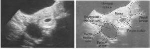 Беременность в одном цикле с кистой желтого тела
