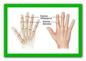 Боль в среднем суставе безымянного пальца