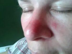 Зуд и пятна на носу