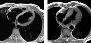 Можно ли делать МРТ при стентах на сосудах сердца