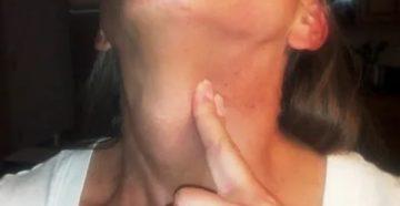 Комок в горле после удаления одной доли щитовидной железы