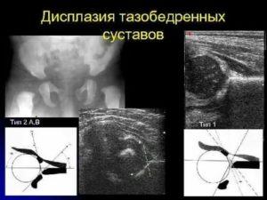 Дисплазия тазобедренного сустава тип 2б