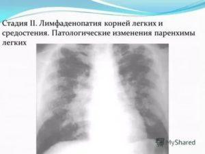 Лимфоденопатия корней легких у ребенка 2 года
