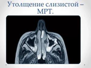Утолщение слизистой на МРТ